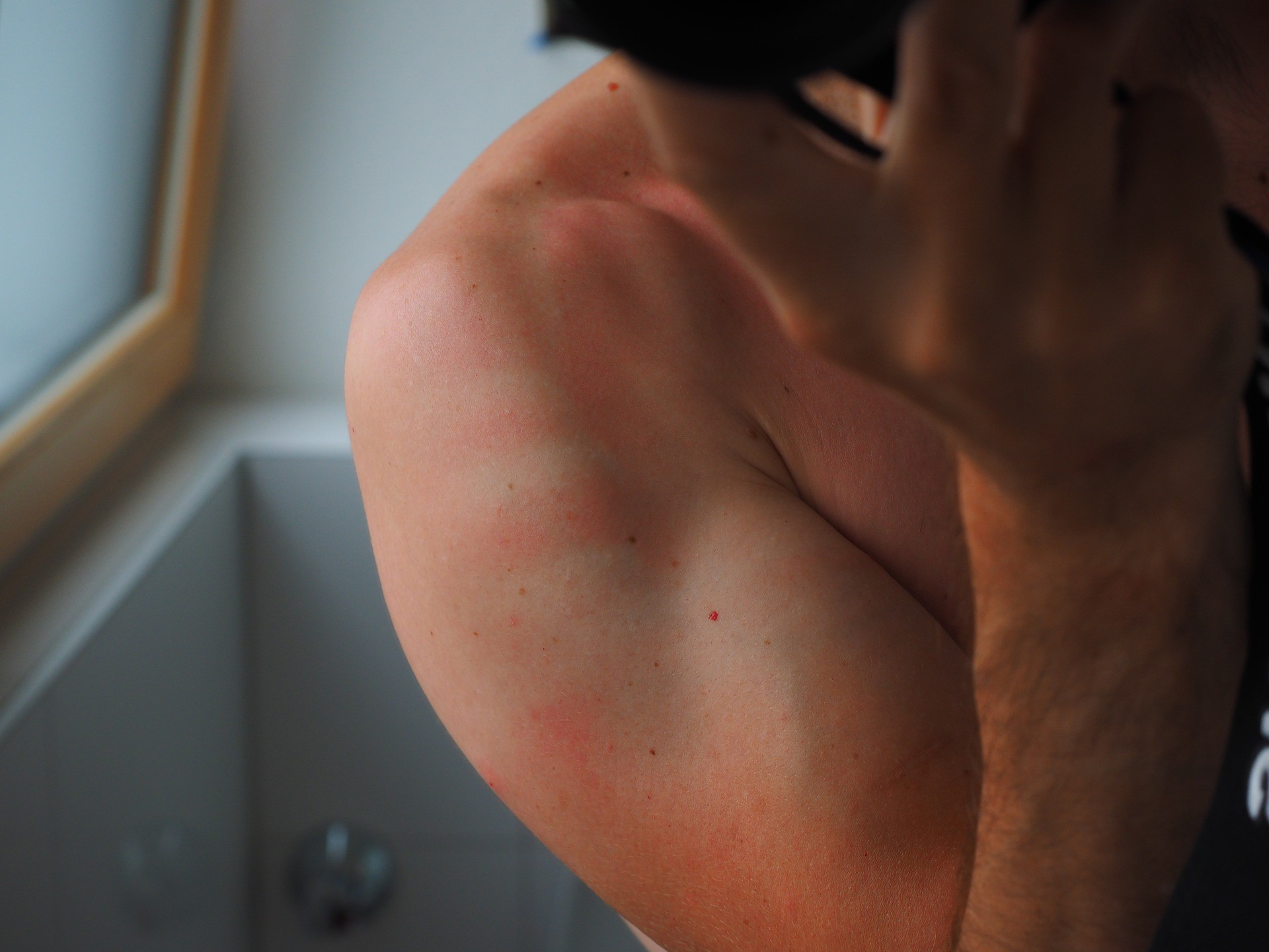 How To Get A Good Night's Sleep When You Are Badly Sunburned